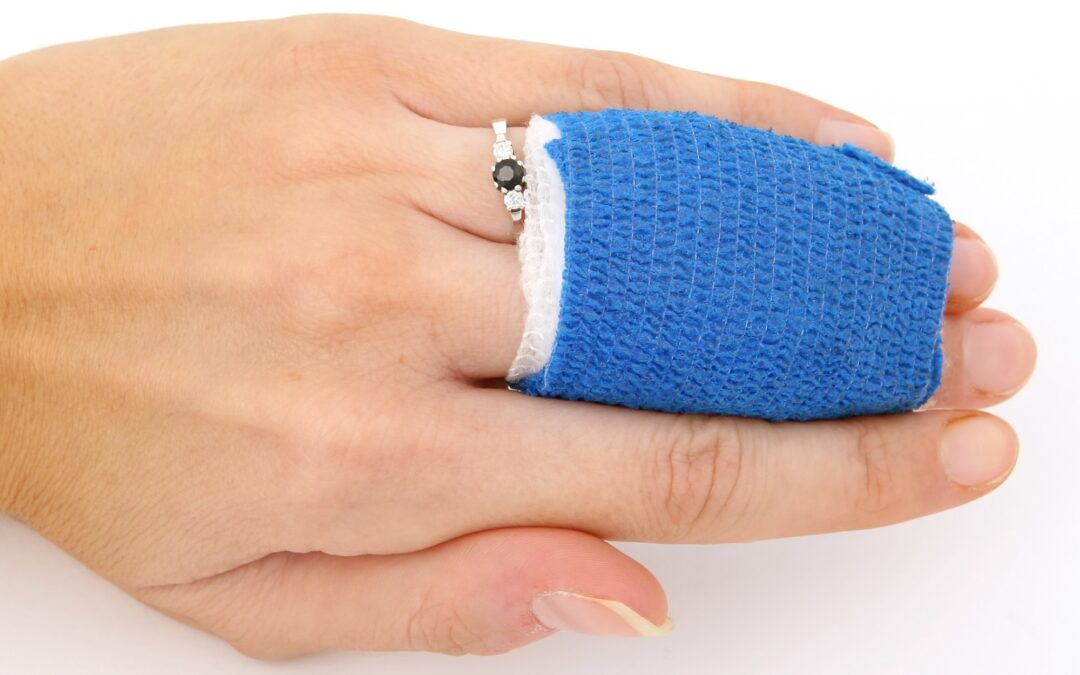 Are You Looking for a Burn Injuries Lawyer After A Work Accident?